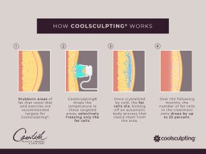 Graphic showing how Coolsculpting freezes stubborn fat
