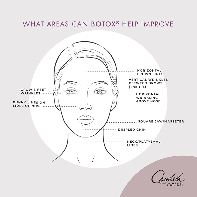 BOTOX® at Los Angeles' Cassileth Plastic Surgery is a versatile treatment that can help to improve the look of multiple facial areas.