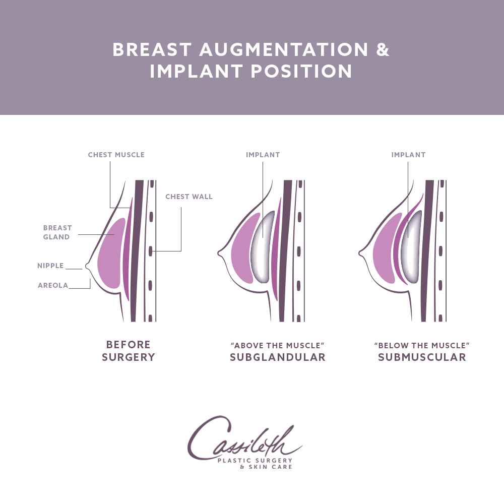 Breast augmentation in Los Angeles at Cassileth Plastic Surgery involves positioning the breast implant either above or below the chest muscle.