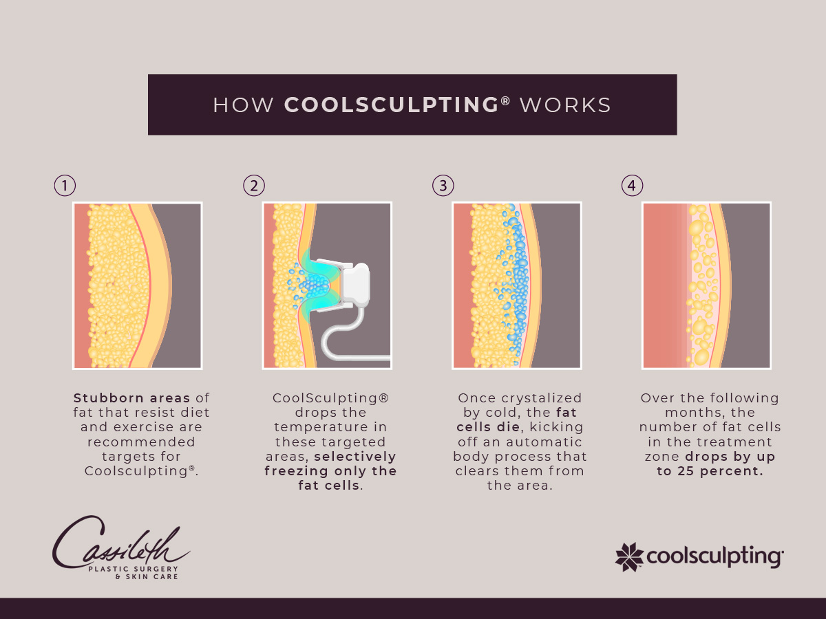See how CoolSculpting® at Los Angeles' Cassileth Plastic Surgery involves identifying and treating unwanted pockets of fat, then watching volume in the area reduce.
