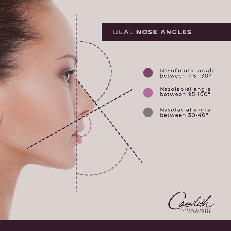 For rhinoplasty at Los Angeles' Cassileth Plastic Surgery, your plastic surgeon will determine your unique ideal nose angles to correct asymmetries.