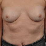 Breast Implant Revision, Dr. Cassileth, Case 10 Before