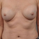 Breast Implant Revision, Dr. Cassileth, Case 10 After