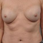 Breast Fat Transfer, Dr. Cassileth, Case 18 After