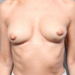 Breast Implant Revision, Dr. Killeen, Case 2 Before