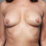 Breast Implant Revision, Dr. Killeen, Case 2 After