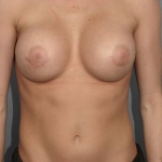 Breast Implant Revision, Dr. Cassileth, Case 111 Before