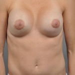 Breast Implant Revision, Dr. Cassileth, Case 111 After