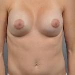 Breast Implant Revision, Dr. Cassileth, Case 111 After