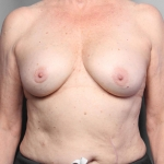Breast Implant Revision, Dr. Killeen, Case 1 Before