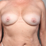 Breast Implant Revision, Dr. Killeen, Case 1 After