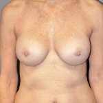 One-Stage Breast Reconstruction, Dr. Killeen, Case 3 Before