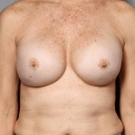 One-Stage Breast Reconstruction, Dr. Killeen, Case 3 After