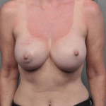 Breast Implant Revision, Dr. Cassileth, Case 12 Before
