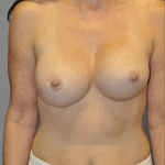 Breast Implant Revision, Dr. Cassileth, Case 12 After
