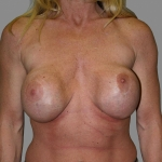 Breast Implant Revision, Dr. Cassileth, Case 1 Before
