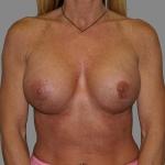Breast Implant Revision, Dr. Cassileth, Case 1 After