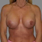 Breast Implant Revision, Dr. Cassileth, Case 1 After