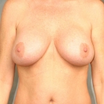Breast Lift, Dr. Cassileth, Case 10 Before