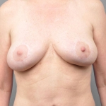 Breast Lift, Dr. Cassileth, Case 10 After