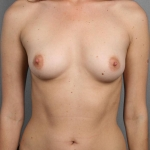 One-Stage Breast Reconstruction, Dr. Cassileth, Case 9 Before