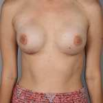 One-Stage Breast Reconstruction, Dr. Cassileth, Case 9 After