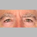 Blepharoplasty, Dr. Sunder, Case 2 After
