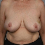 Breast Reconstruction Fat Transfer, Dr. Cassileth, Case 26 Before