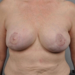 Breast Reconstruction Fat Transfer, Dr. Cassileth, Case 26 After
