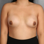 One-Stage Breast Reconstruction, Dr. Killeen, Case 71 After