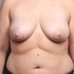One-Stage Breast Reconstruction, Dr. Killeen, Case 1 Before