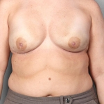 One-Stage Breast Reconstruction, Dr. Killeen, Case 1 After