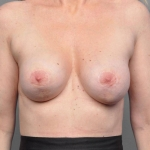 Breast Implant Revision, Dr. Cassileth, Case 15 Before