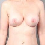 Breast Implant Revision, Dr. Cassileth, Case 15 After