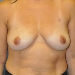One-Stage Breast Reconstruction, Dr. Cassileth, Case 30 Before