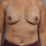 One-Stage Breast Reconstruction, Dr. Cassileth, Case 30 After