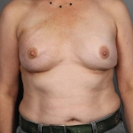 One-Stage Breast Reconstruction, Dr. Cassileth, Case 35 Before