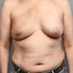 One-Stage Breast Reconstruction, Dr. Cassileth, Case 35 After