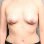 One-Stage Breast Reconstruction, Dr. Cassileth, Case 40 Before