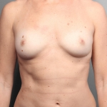 One-Stage Breast Reconstruction, Dr. Cassileth, Case 37 Before