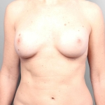 One-Stage Breast Reconstruction, Dr. Cassileth, Case 37 After