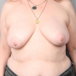 One-Stage Breast Reconstruction, Dr. Killeen, Case 70 Before