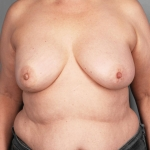 One-Stage Breast Reconstruction, Dr. Killeen, Case 70 After