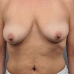 One-Stage Breast Reconstruction, Dr. Cassileth, Case 25 Before