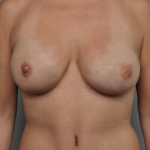 One-Stage Breast Reconstruction, Dr. Cassileth, Case 25 After
