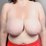 Breast Reduction, Dr. Killeen, Case 63 Before