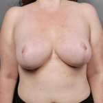 Breast Reduction, Dr. Killeen, Case 63 After