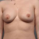 Breast Implant Revision, Dr. Cassileth, Case 14 After