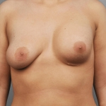 Breast Asymmetry, Dr. Cassileth, Case 14 Before