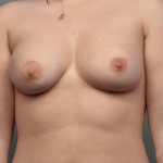 Breast Asymmetry, Dr. Cassileth, Case 14 After
